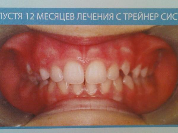 виниры на зубы владимир